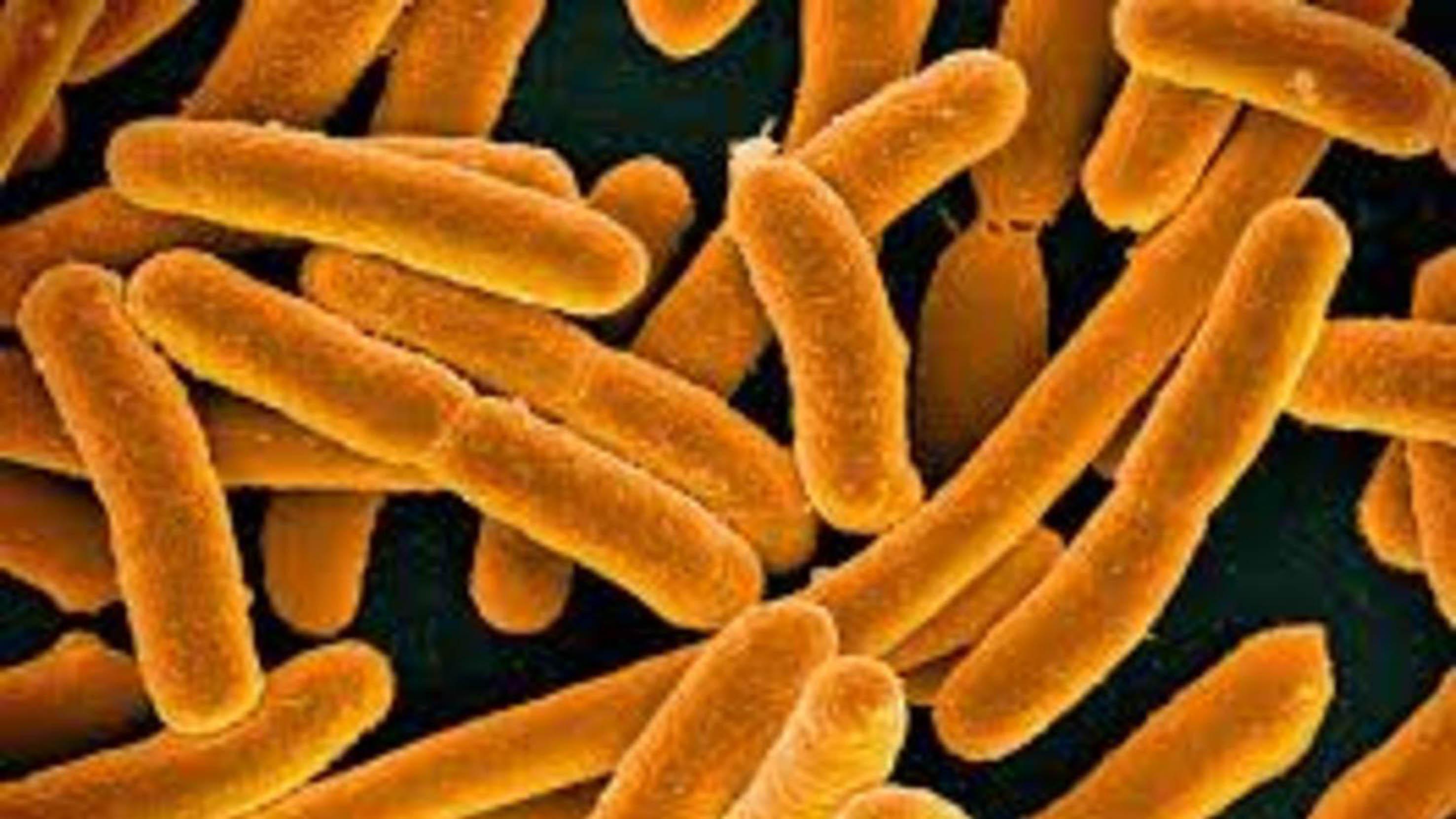 Se debe reducir dramáticamente el consumo de antibióticos-UNAM